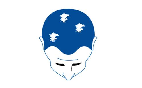 Haarausfall tritt in verschiedenen Formen auf