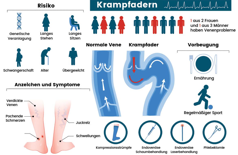 Krampfadern-Infografik