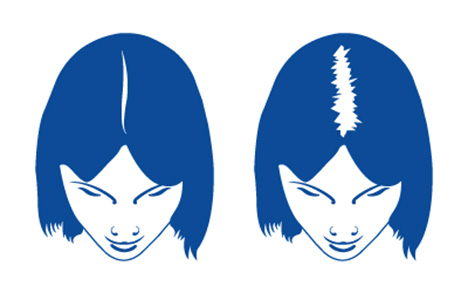 Diffuse Alopezie ist nur eine Form von Haarausfall