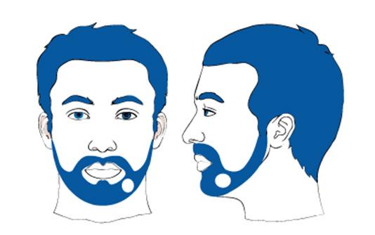 Sogar am Bart kann man Haarausfall haben