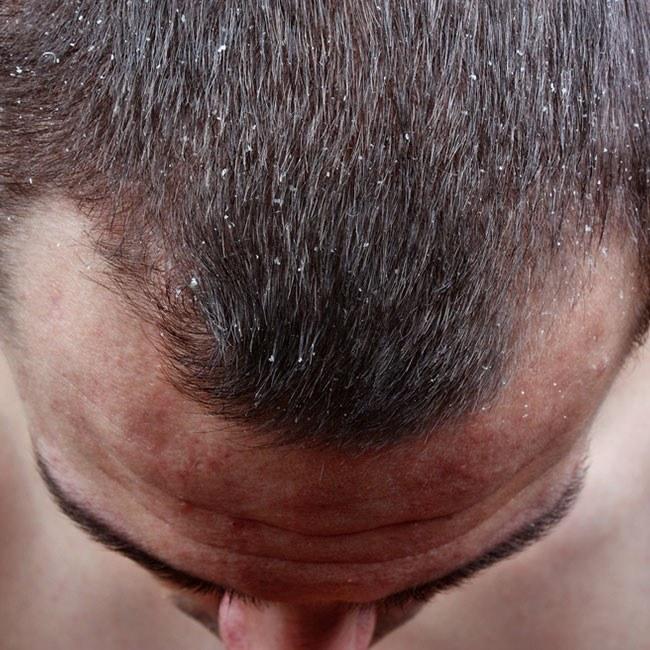 Wie kann Haarausfall bekämpft werden?