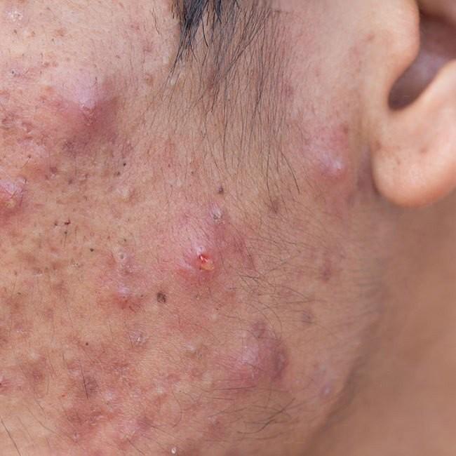 Akne Behandeln und Entfernen