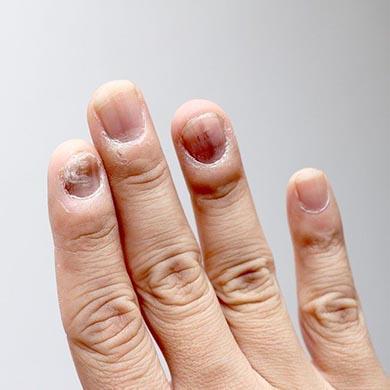 Oregano-Öl gegen Pilzinfektionen