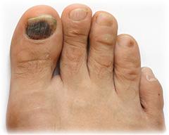 Infizierter-Nagel
