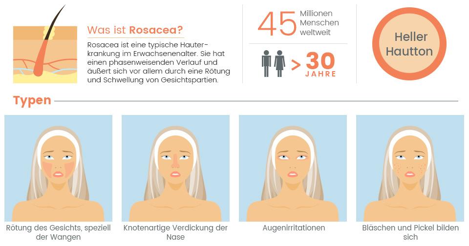 Infografik Rosacea