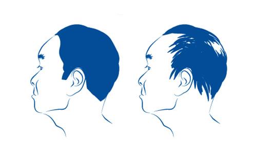 Temporärer Haarausfall wird oft durch Stress ausgelöst